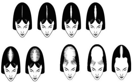 علت ریزش مو در طب سنتی